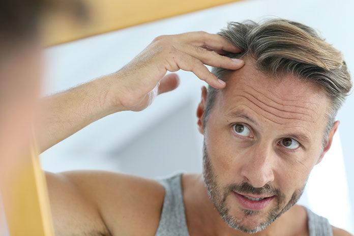 Uzupełnianie włosów sposobem na łysienie!